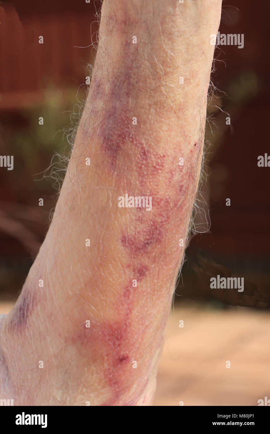 Bruising (hematoma) caused by internal bleeding as a result of a blood test having been performed. - Stock Image