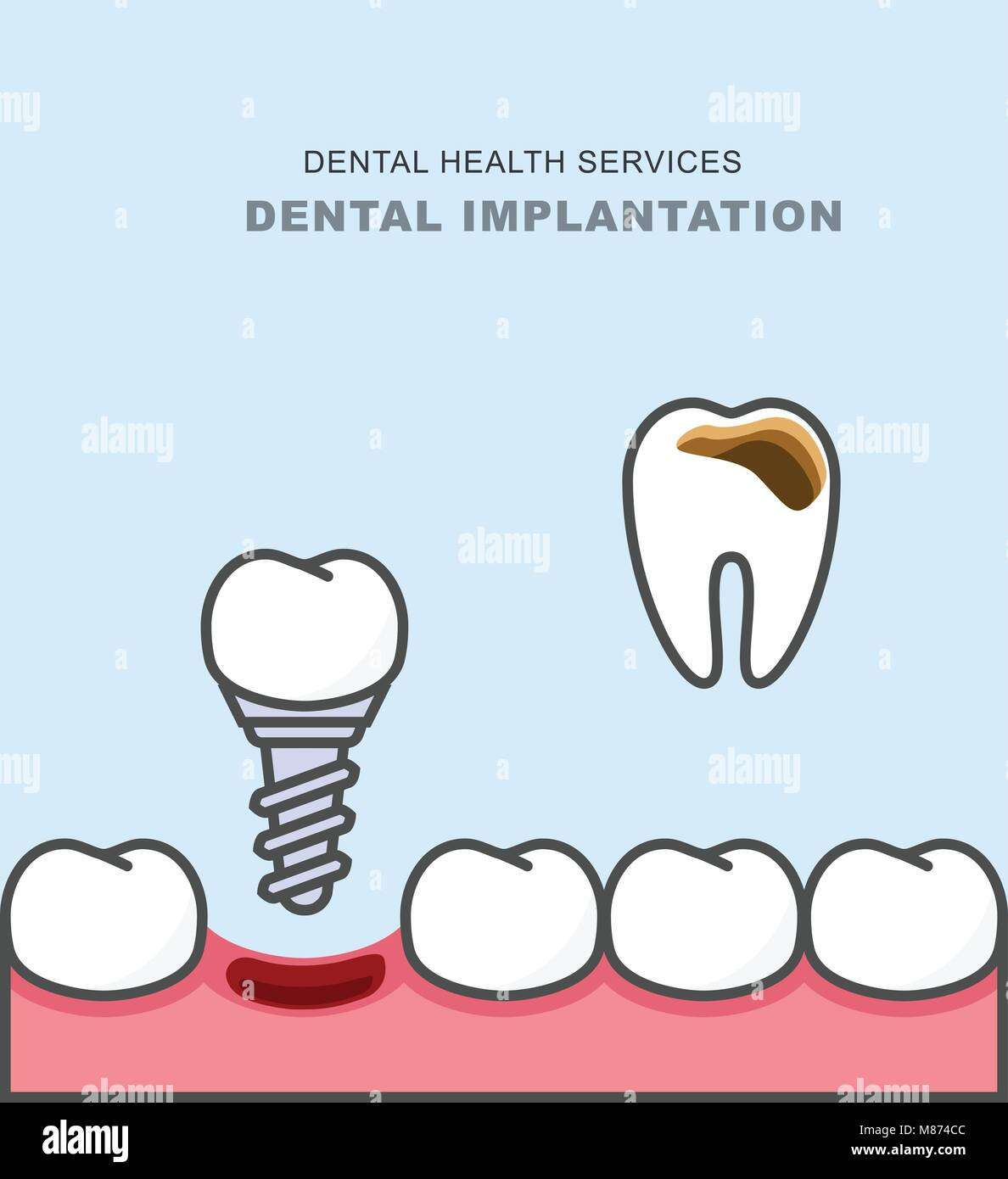 Dental implant instead of carious tooth - teeth prosthetics - Stock Image