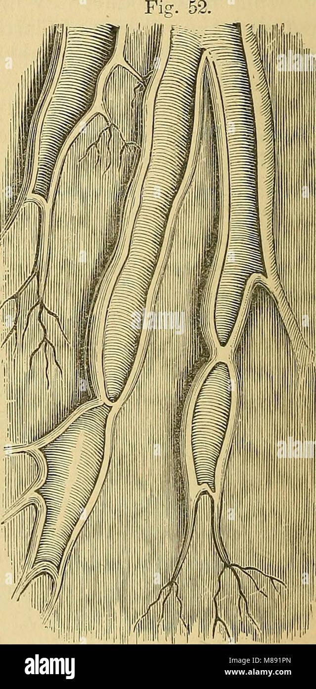 Elements of pathological anatomy (1843) (21252813432) - Stock Image