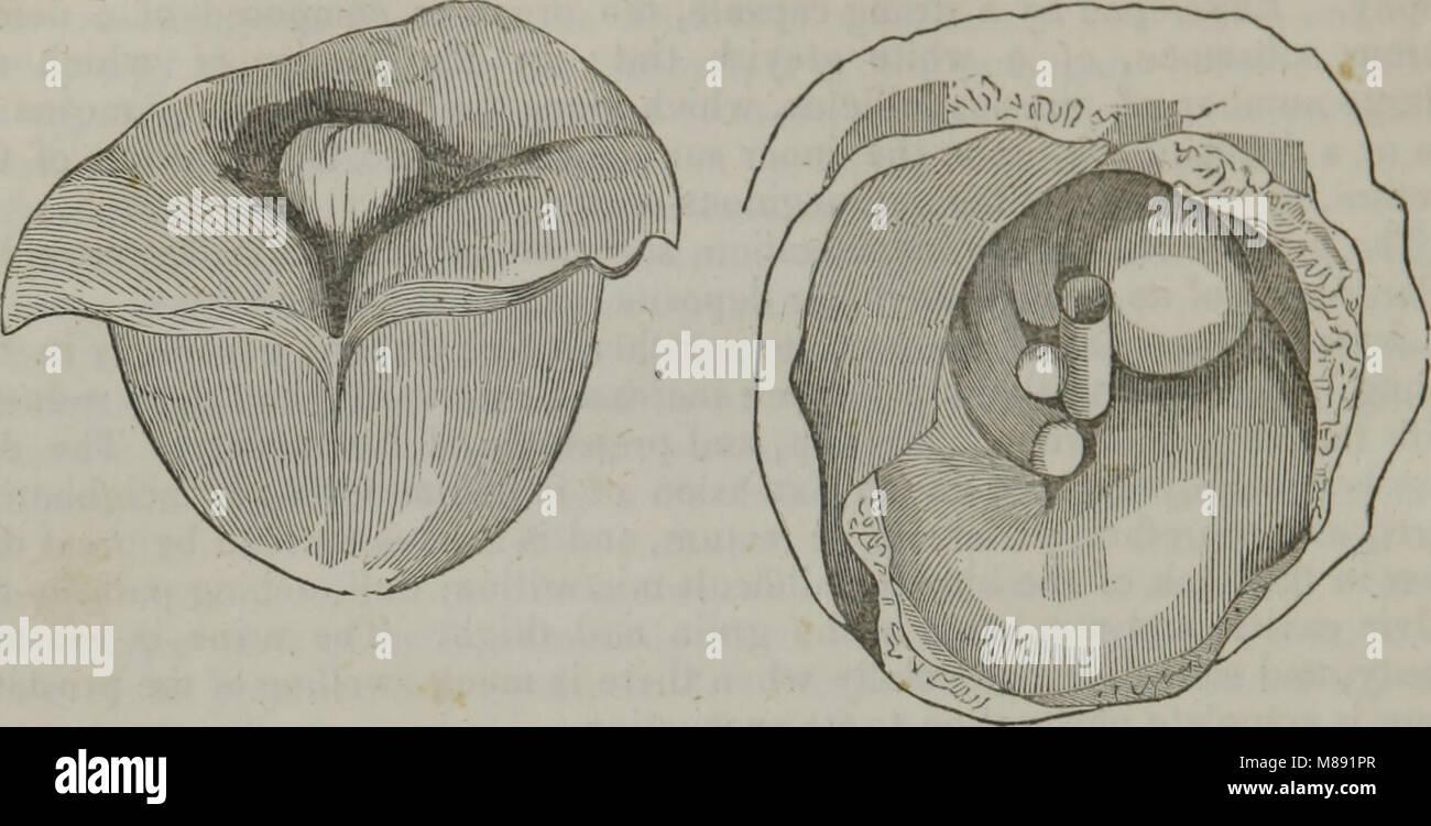Elements of pathological anatomy (1845) (14596290760) - Stock Image