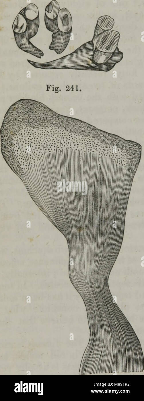Elements of pathological anatomy (1845) (14782665482) - Stock Image