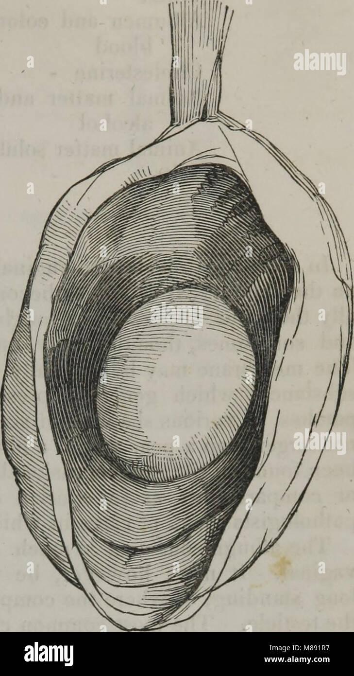 Elements of pathological anatomy (1845) (14802856283) - Stock Image