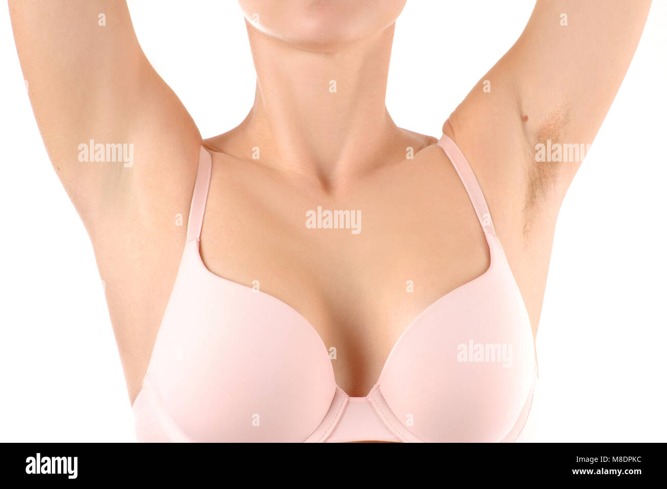 Female armpits before and after shaving. Woman with hairy armpit and clean armpit - Stock Image