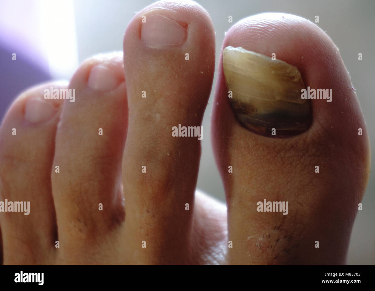 Cracked Nail Stock Photos & Cracked Nail Stock Images - Alamy