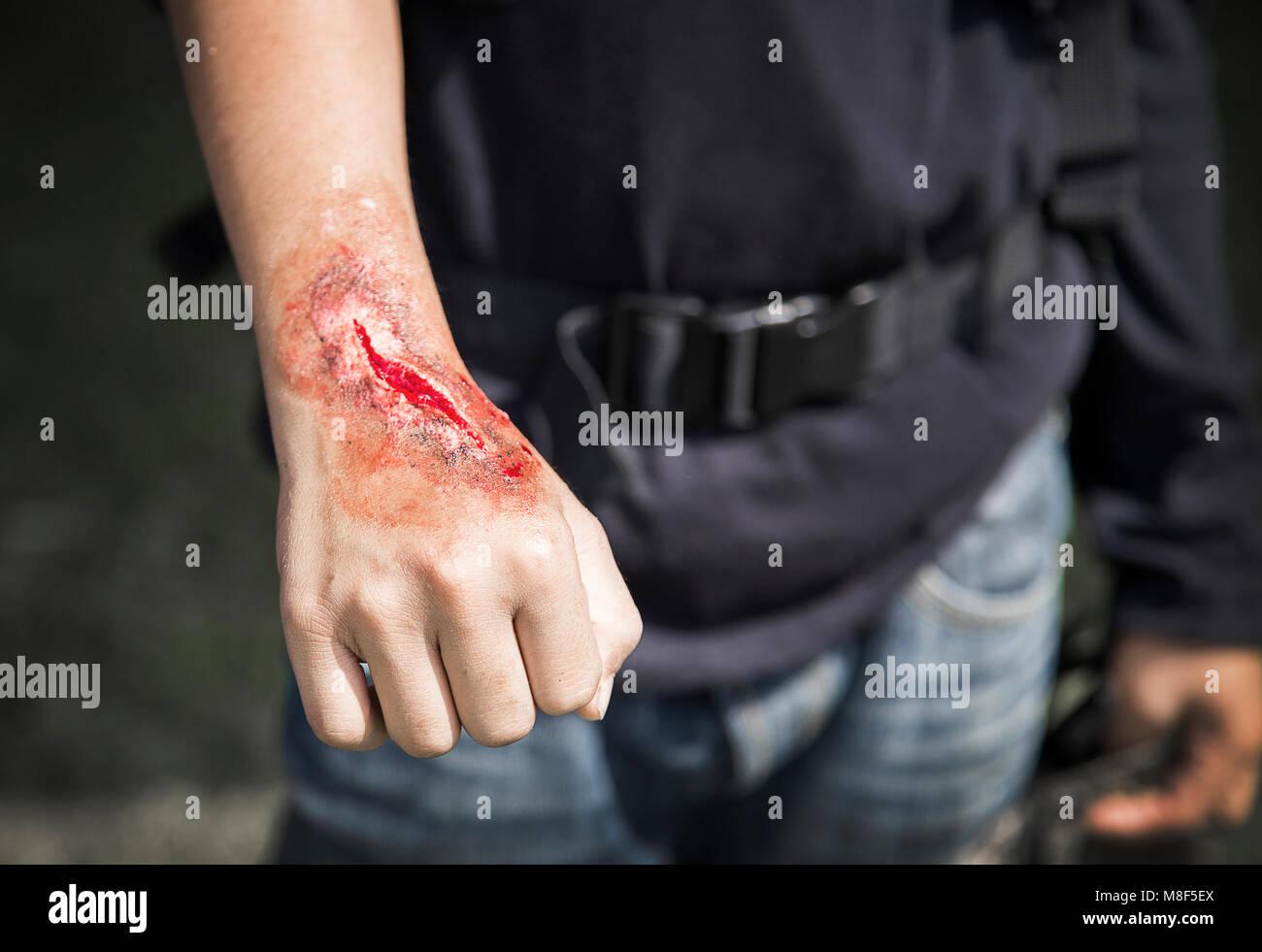 acidence scar make up artist on stuntman hand in cinema industry - Stock Image
