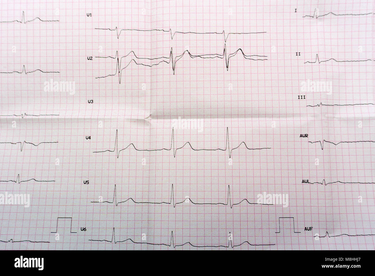 Emergency cardiology and intensive care. ECG with acute period of large-focal widespread anterior myocardial infarction - Stock Image