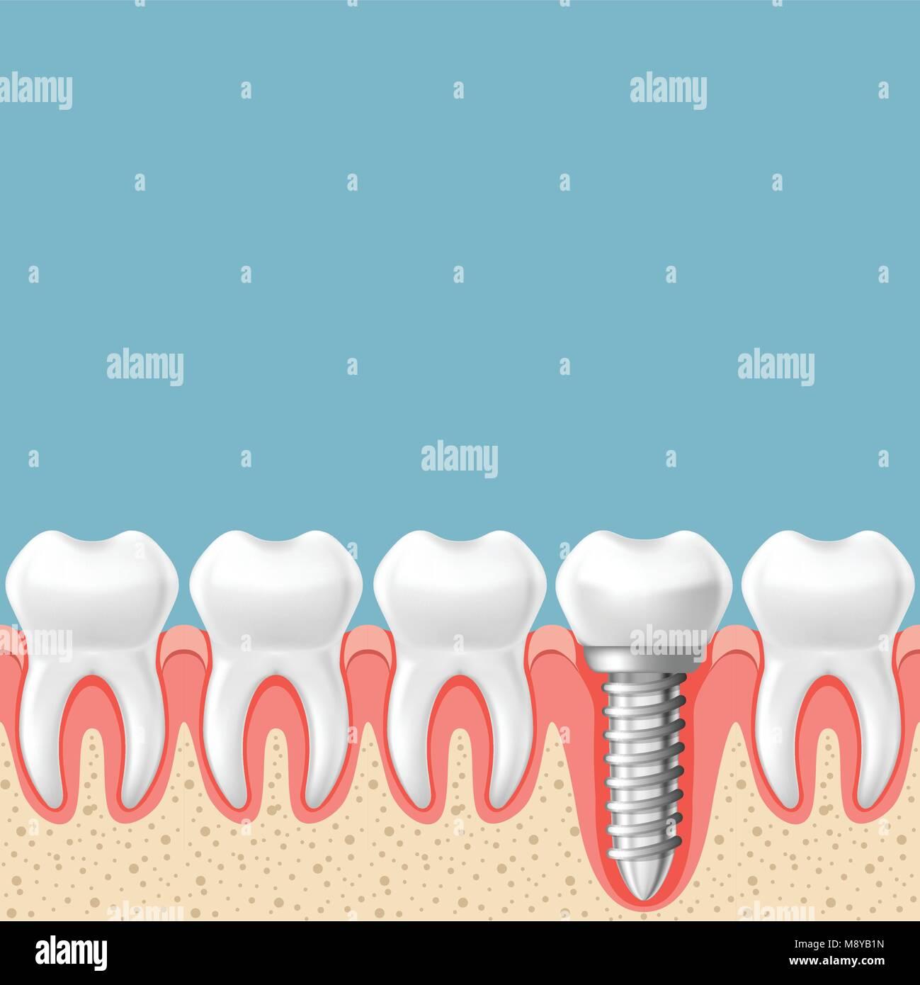 Row of teeth with dental implant - teeth prosthetics scheme, gum cut - Stock Image