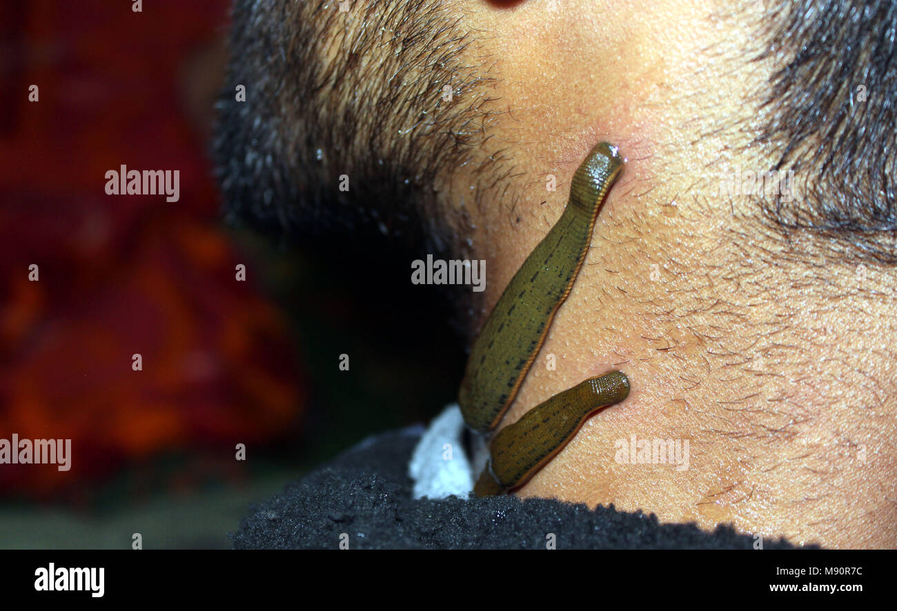 Anantnag, India. 20th Mar, 2018. A Kashmiri men undergoes traditional treatment therapy whereby it is believed that leaches can suck out impure from the body on the outskirts of Anantnag district on 21, March, 2018 Credit: Aasif Shafi/Pacific Press/Alamy Live News - Stock Image