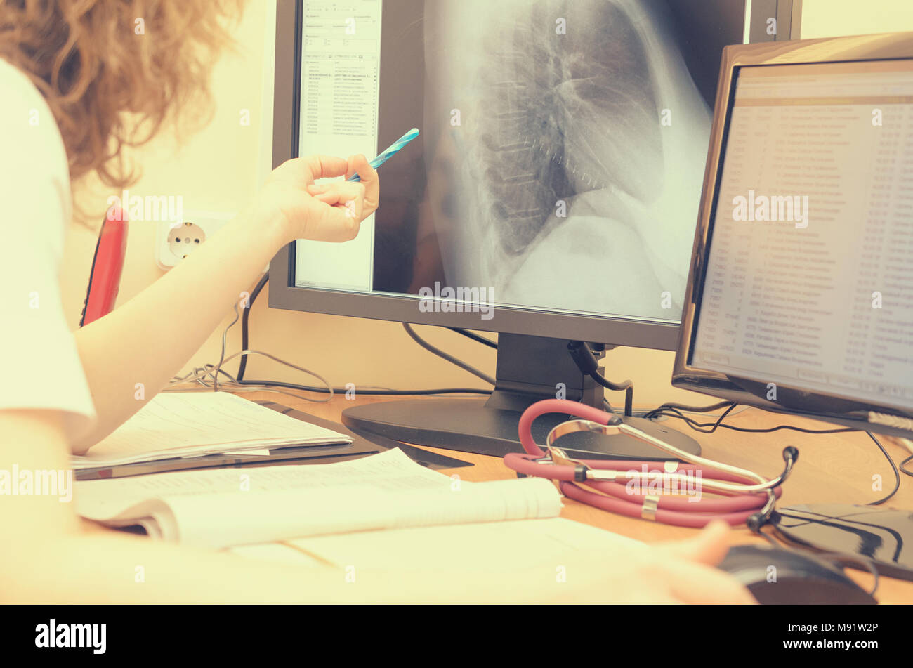 The radiologist looks at the x-ray images on a computer monitor. - Stock Image