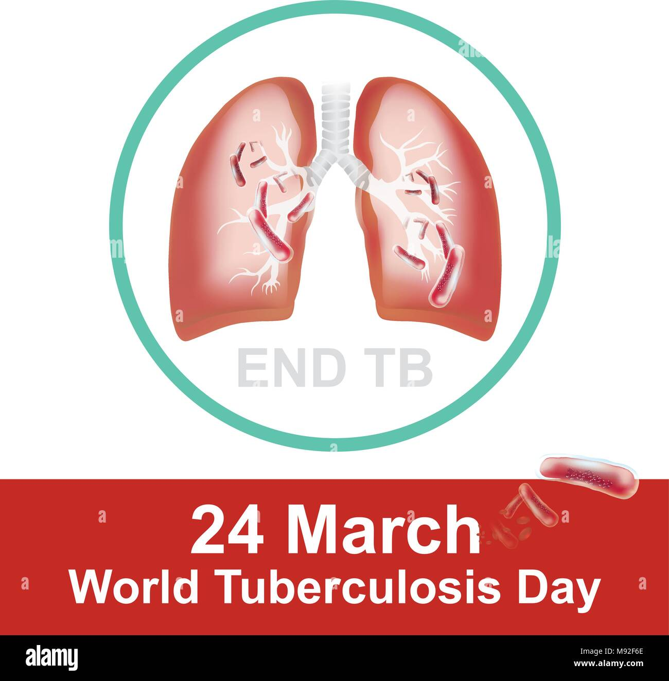 Patients With Respiratory Infections Caused By Tuberculosis