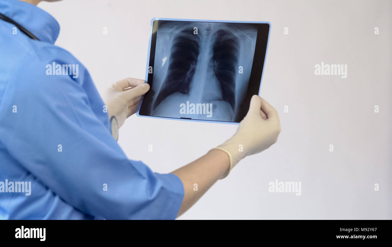 Female therapist analyzing lungs x-ray, patient examination result, diagnosis - Stock Image