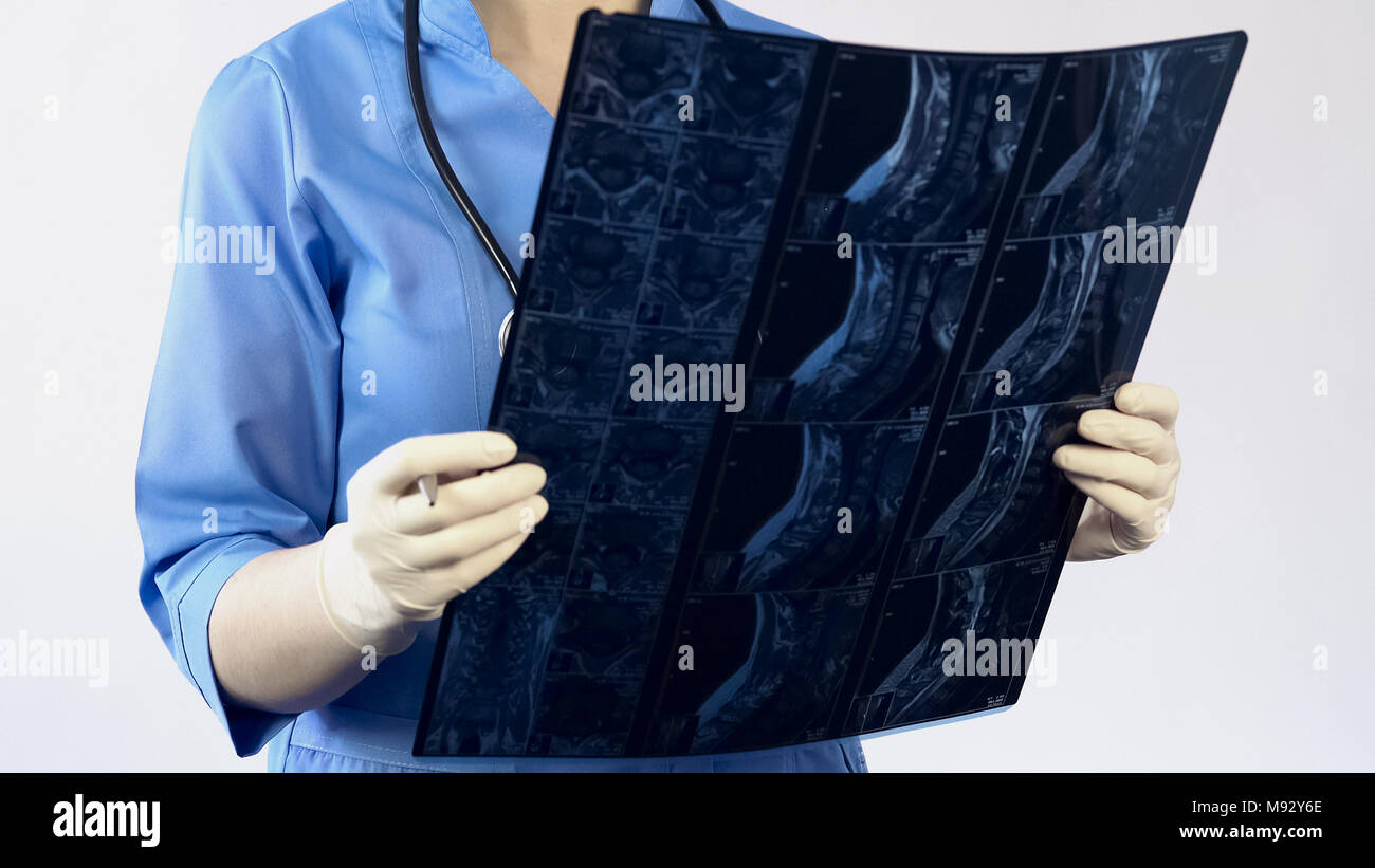 Professional surgeon looking on neck x-ray, making diagnosis, treating patient - Stock Image