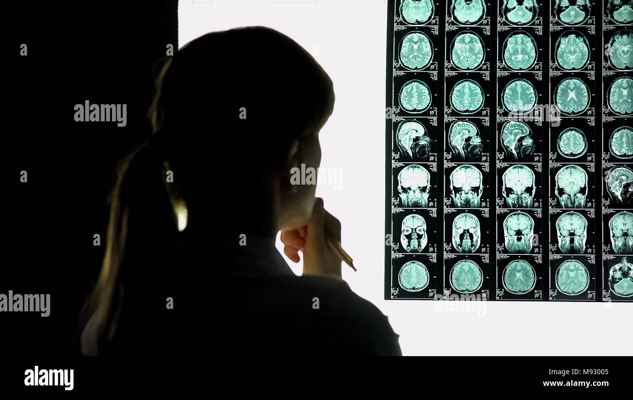 Thoughtful female doctor analyzing brain scan, medical research, difficult case - Stock Image
