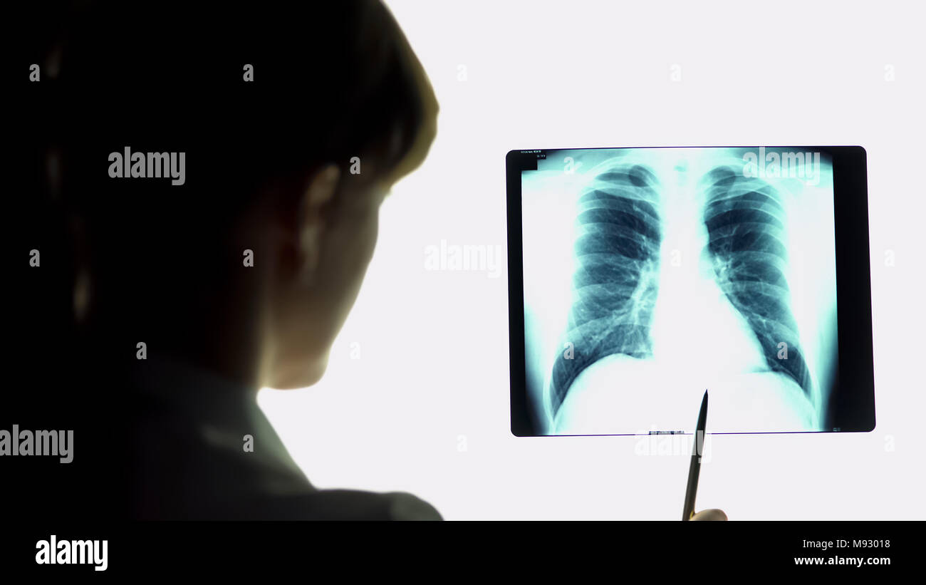 Therapist analyzing pneumonia lungs x-ray image, making conclusions, healthcare - Stock Image