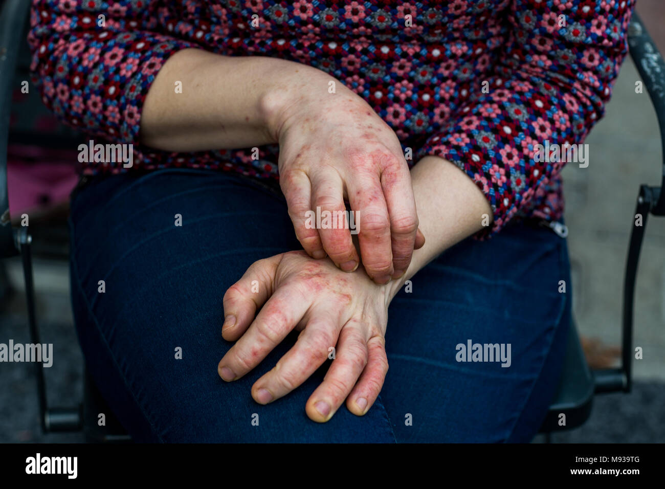 Young woman's hands with dry and stressed red dyshidrotic