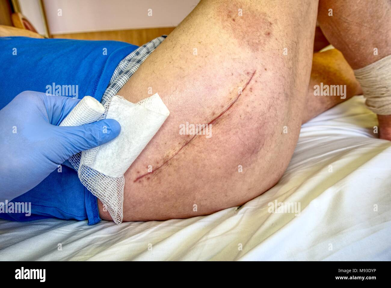 Old Human leg with postoperative scar of hip joint surgery. Selective focus of male body. Heart disease. Medical concept - Stock Image