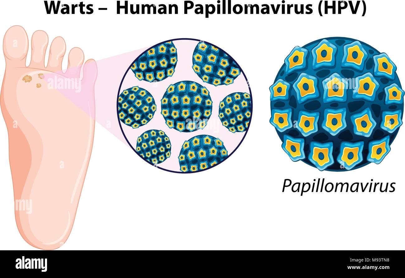 Diagram Showing Warts In Human Foot Illustration