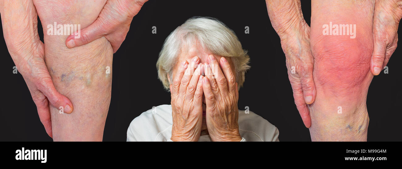 The collge about illness - varicose veins and pain in knee of old woman - Stock Image