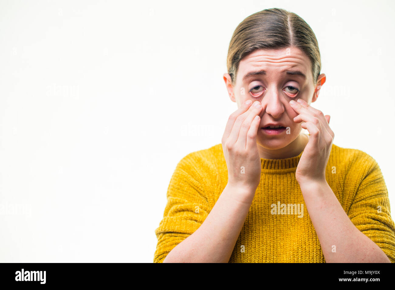 A young Caucasian woman girl feeling and looking unwell sick hungover,  pulling her eyelids down, shot against a white background, UK - Stock Image