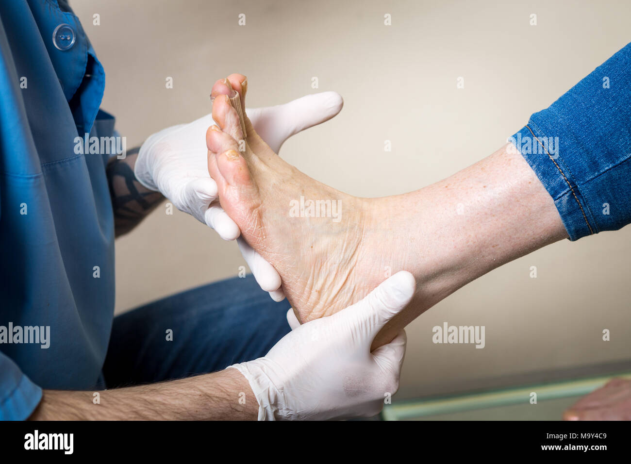 The hands of a young man doctor orthopedist conducts diagnostics, foot foot test of a woman, for the manufacture of individual, orthopedic insoles. - Stock Image