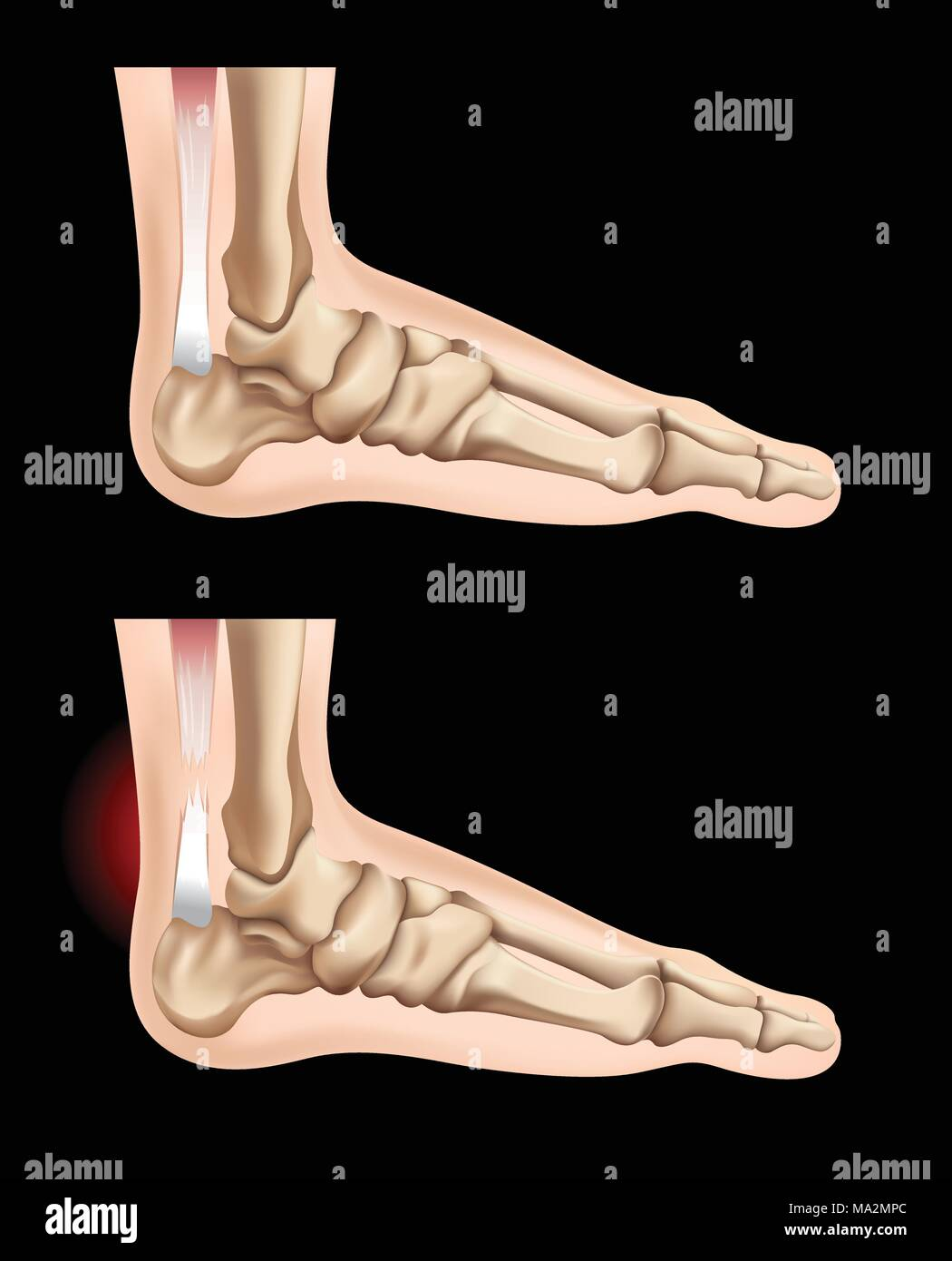 Human feet and injury in tendon illustration - Stock Vector
