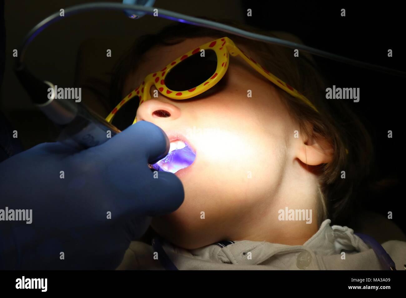 Young child getting molars sealed at the dentist - Stock Image