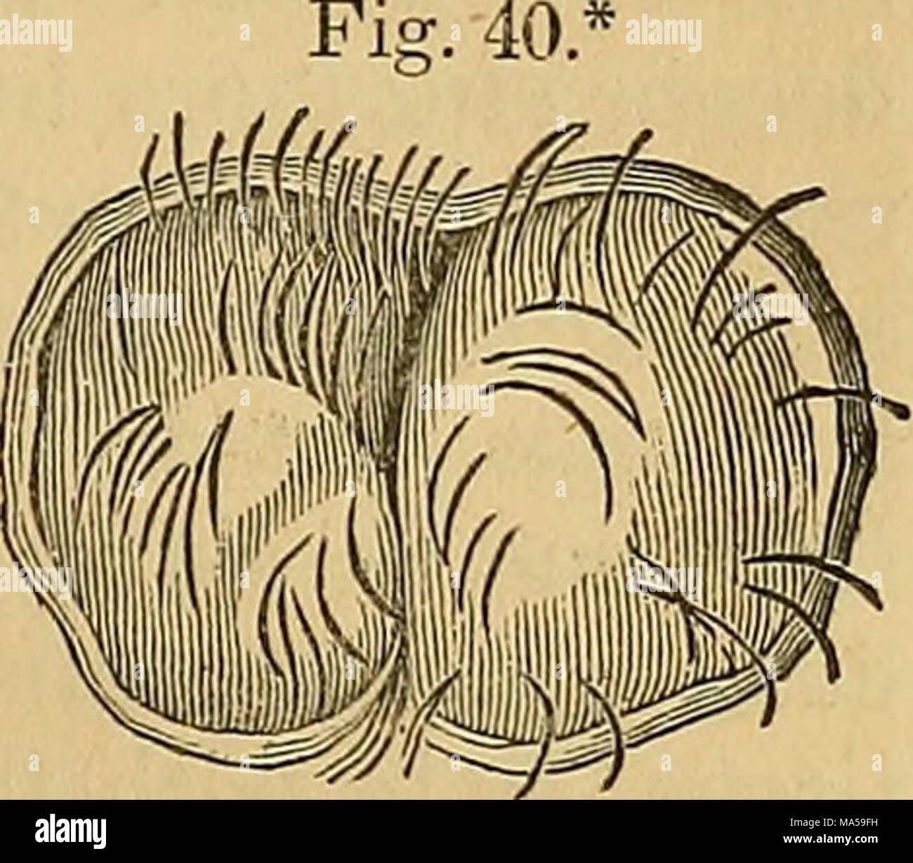 . Elements of pathological anatomy - Stock Image