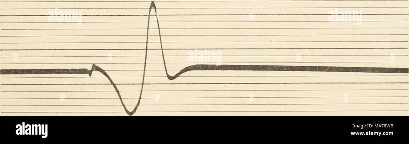 . Elektrophysiologie menschlicher Muskeln . Abb. 22. Dasselbe. Koter Muse. Soleus der Katze. Elektrodendistanz 20 mm. Erheblich längere Dauer und größerer Gipfelabstand der Stromperiode, als in Abb. 21. (Nach Kohl rausch.) abstand aufgenommen sind, so ist auch hier das Verhältnis etwa 4:3. Der Wellenlängenunterschied ist aber noch beträcht- lich größer. Das Verhältnis ist hier etwa 3:2. Die relative Trägheit der roten Muskeln kommt also in diesen Messungen ganz eklatant zum Vorschein. Stock Photo