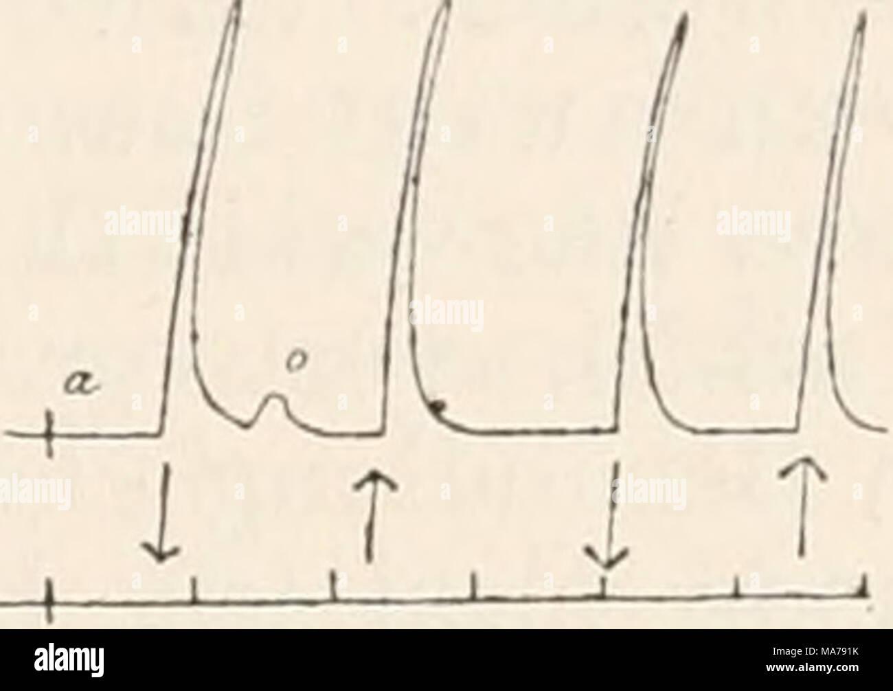 """. Elektrophysiologie . i T 1 T I T Fig. 194. Nerv-Muskelpräparat vom Frosch. Ein schwacher aufsteigend oder absteigend gerichteter Strom löst bei beliebiger Lage der Elektroden nur Schliessungszuckung aus (b). Nach 5 Min. dauerndem Eintauchen des Nerven in 1 """"/o KNOg-Lösung er- scheint die Erregbarkeit herabgesetzt. Gleichwohl löst derselbe Strom an allen Punkten der veränderten Nerveustrecke auch Oetfiiungszuckungen von gleicher Höhe wie die Schliessungszuckungen aus (c, d). Durch Auslaugen mit physiologischer Koch- salzlösung (15 Min.) lässt sich die Oeflfnungszuckung wieder beseitigen  Stock Photo"""