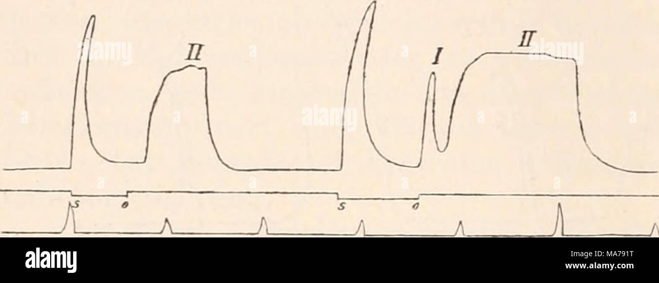 . Elektrophysiologie . 586 ^i^ elektrische Erregun,^ der Nerven. Zeit, wo nach Application von NaCl auf die dem Muskel näher ge- legene Elektrode ein absteigend gerichteter schwacher Strom bereits kräftigen Schliessungstetanus auslöst, beobachtet man in der Regel bei Schliessung desselben Stromes in umgekehrter Richtung nur eine einfache Zuckung, deren Verlauf und Grösse sich nicht von jenen Schliessungszuckungen unterscheidet, welche unter denselben Versuchs- bedingungen vor der localen NaCl-Behandlung ausgelöst wurden. Es dürfte dieser Umstand insoferne nicht ohne Interesse sein, als er zu b Stock Photo