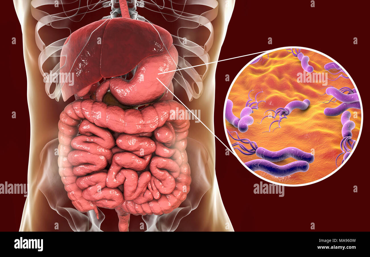 Helicobacter Pylori High Resolution Stock Photography And Images Alamy