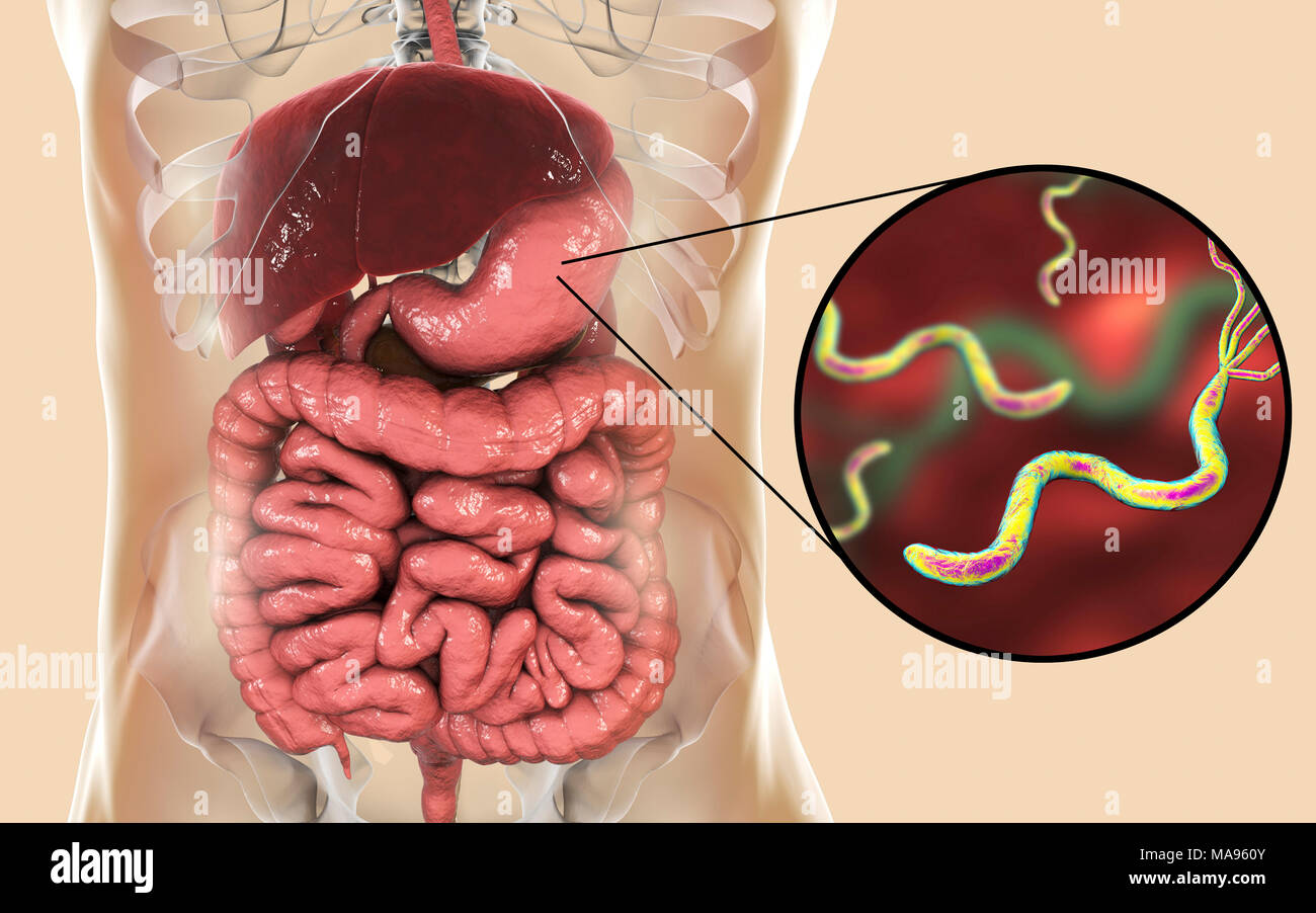 Helicobacter pylori bacteria. Computer illustration of Helicobacter pylori  bacteria in a human stomach. Formerly known as Campylobacter pyloridis, ...