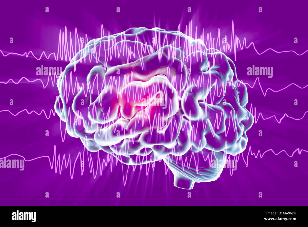 Brain and brain waves in epilepsy, computer illustration  This EEG