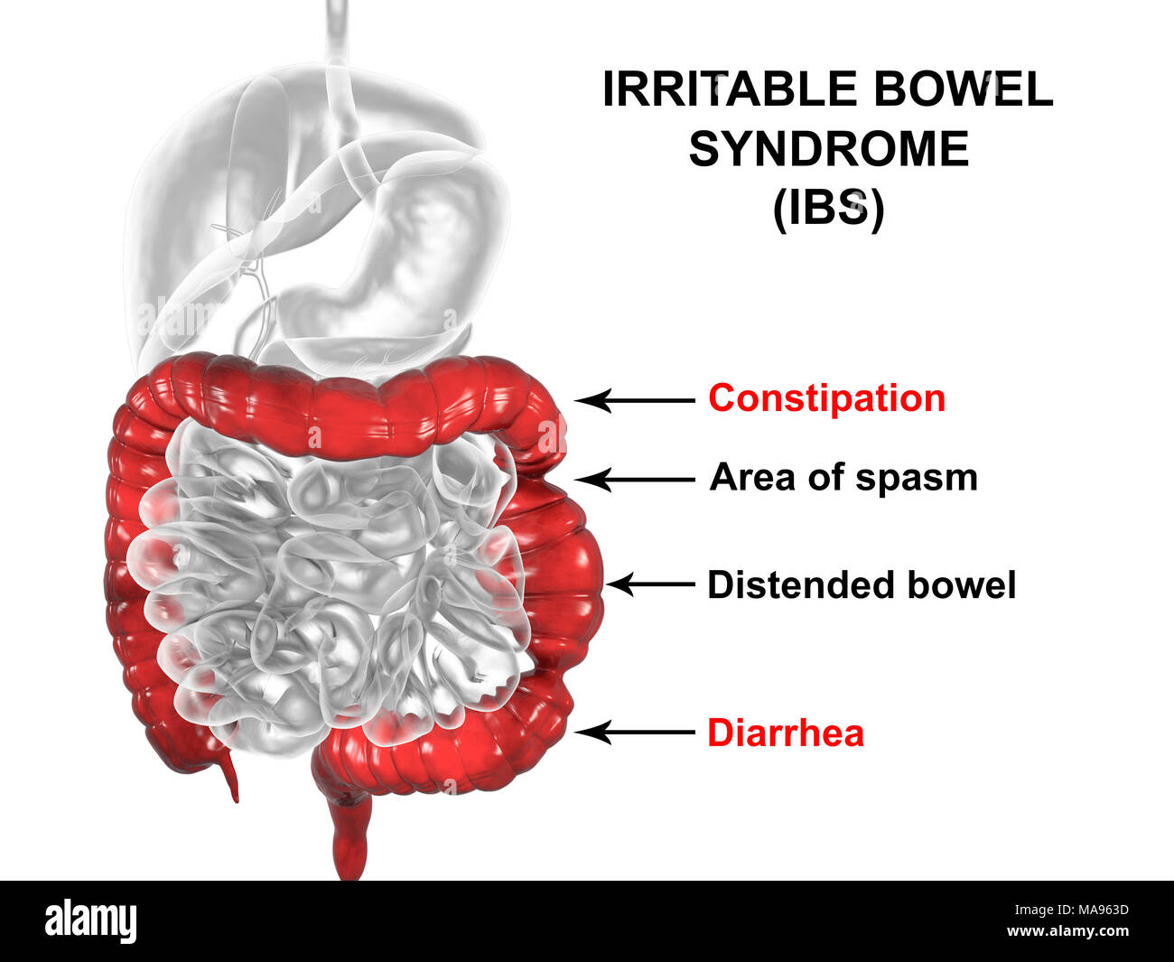 pictures Irritable Bowel Syndrome: Symptoms, Causes and How to Get Rid of it