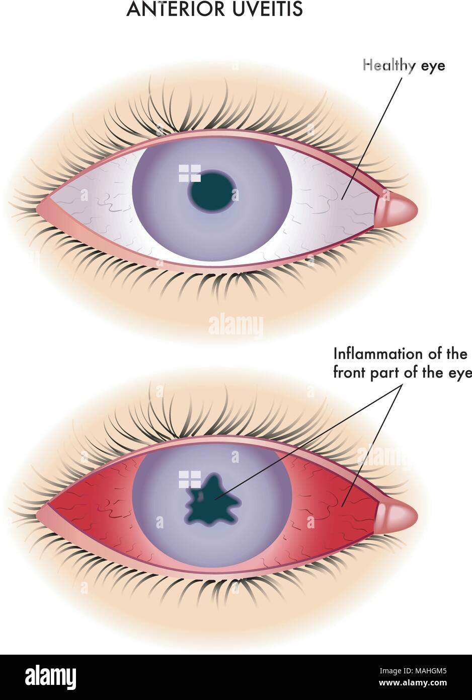 Medical illustration of the symptoms of anterior uveitis - Stock Image
