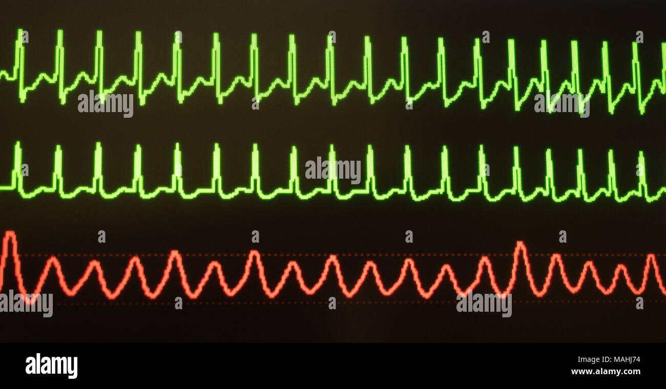 Monitor showing supraventricular tachycardia in green and arterial blood pressure in red against a black background. - Stock Image