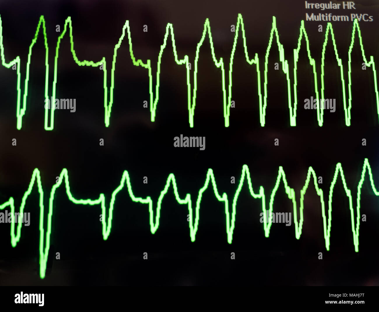 premature ventricular contractions stock photos premature