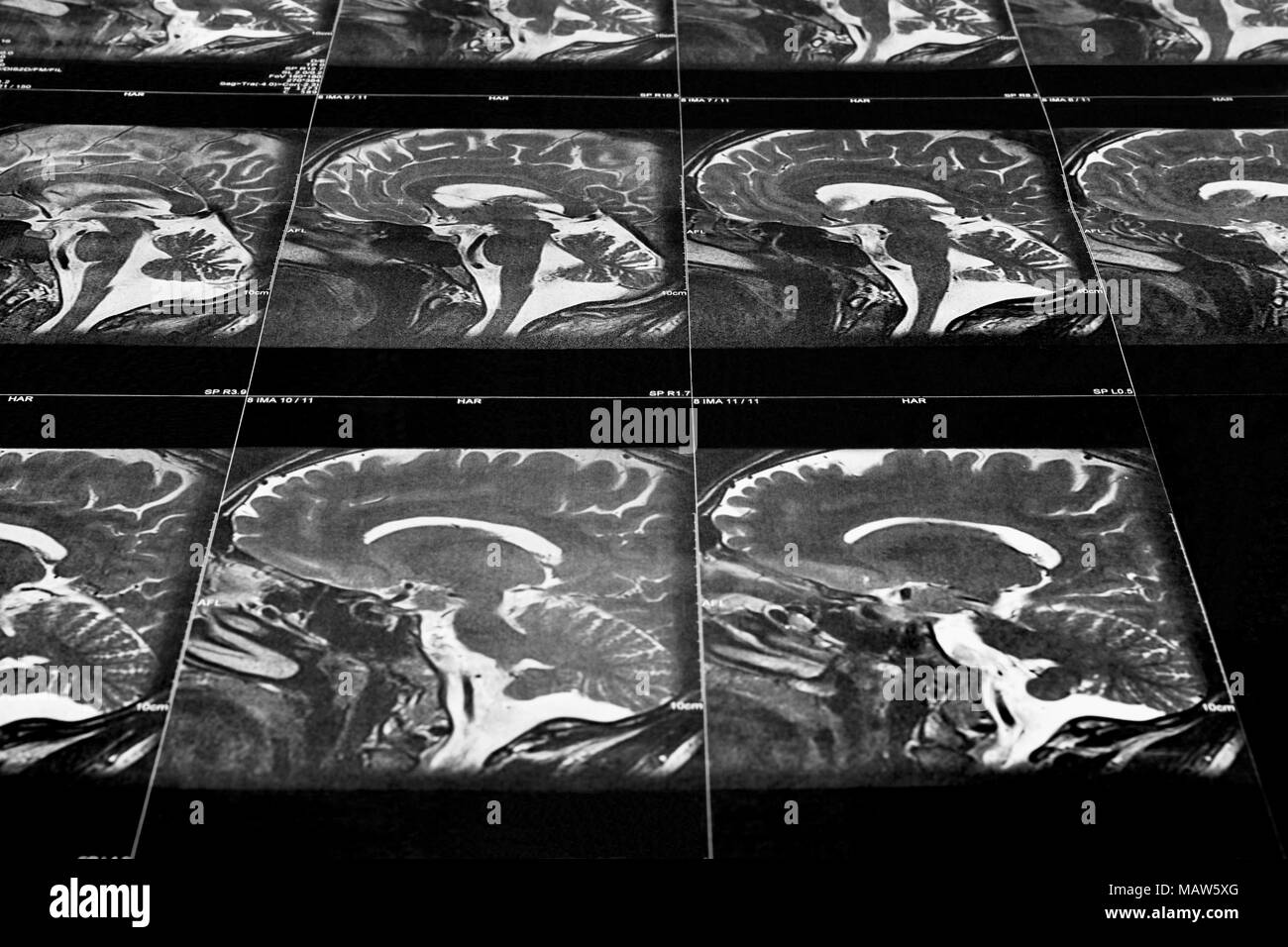 Perspective View Of A Mri Scan Of The Human Brain Sagittal View