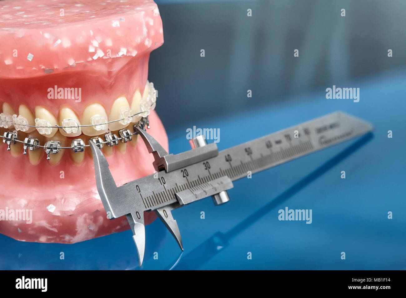 Crooked Teeth Smile Stock Photos & Crooked Teeth Smile Stock Images ...