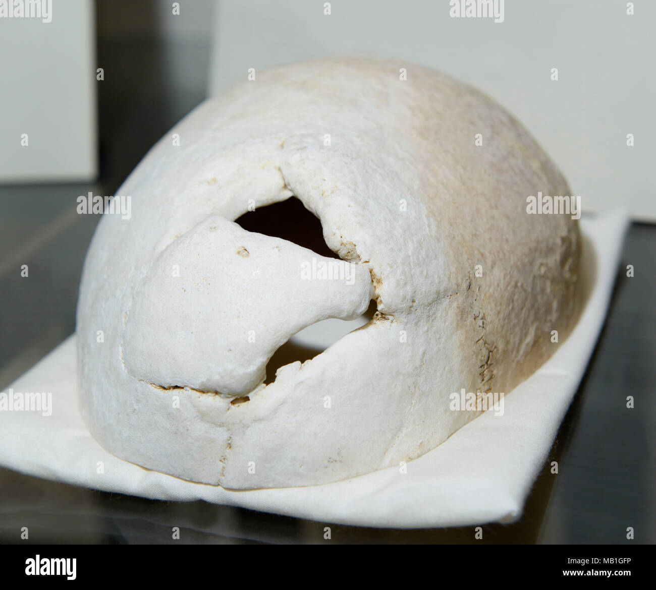 Phineas Gage skull, on display at Harvard Medical School. Hole in the cranium shows where tamping iron went through his frontal lobe in 1848. - Stock Image
