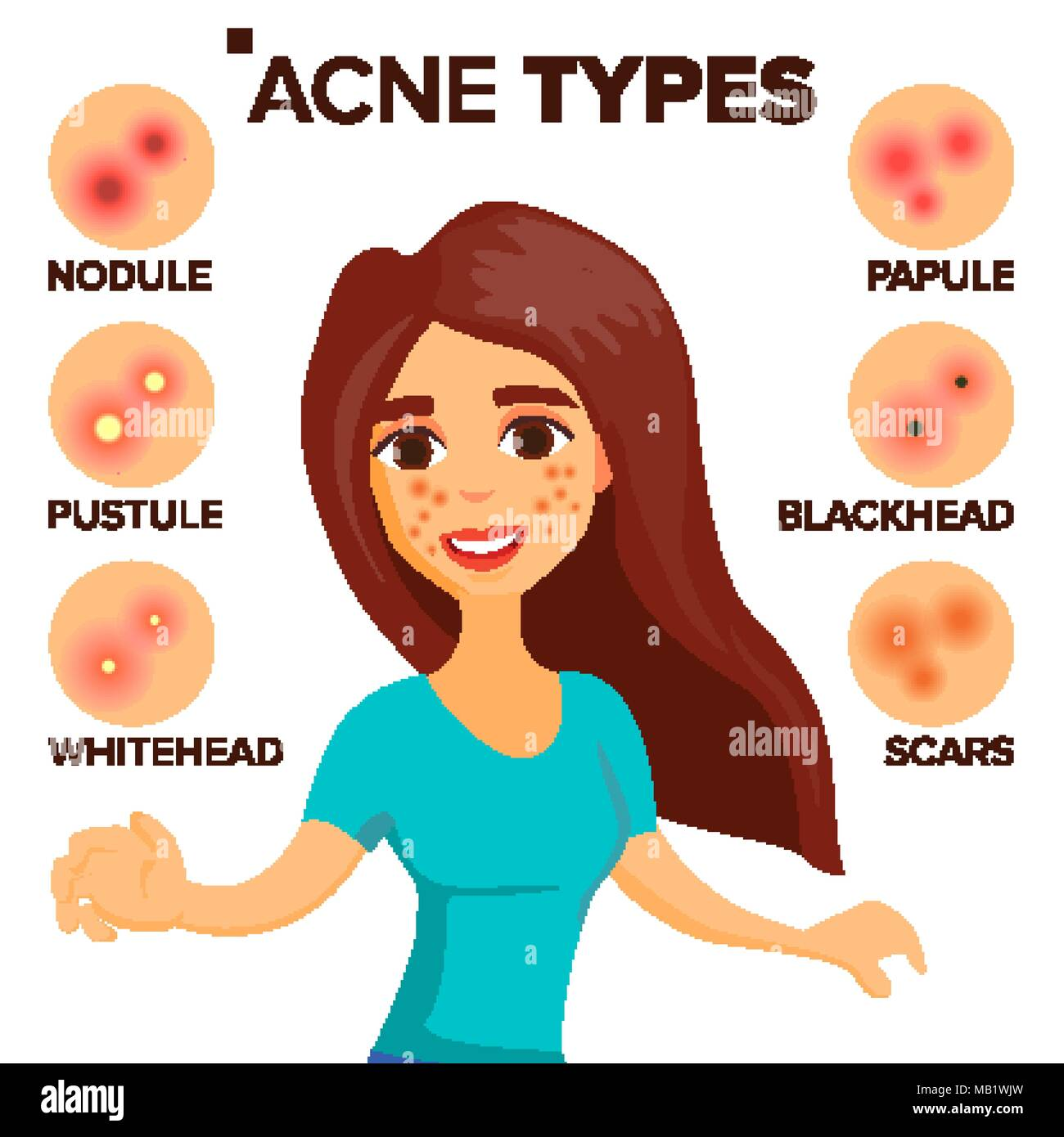 Acne Types Vector  Girl With Acne  Skin Care  Treatment  Healthy  Nodule  Whitehead  Isolated