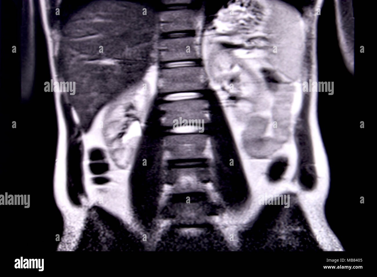 Mri Scan Cancer Stock Photos & Mri Scan Cancer Stock Images - Alamy
