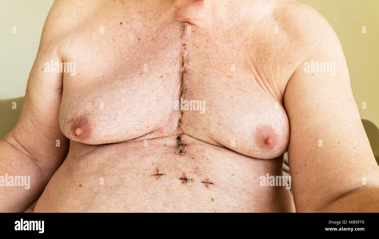 Scar from open heart surgery of coronary artery disease, where the sternum was cut in two, and the rib cage sprung. Below the scar holes show where th - Stock Image