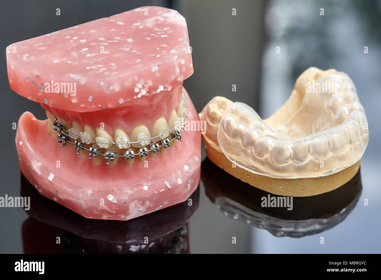 Human jaw or teeth model with metal wired dental braces and closeup ...