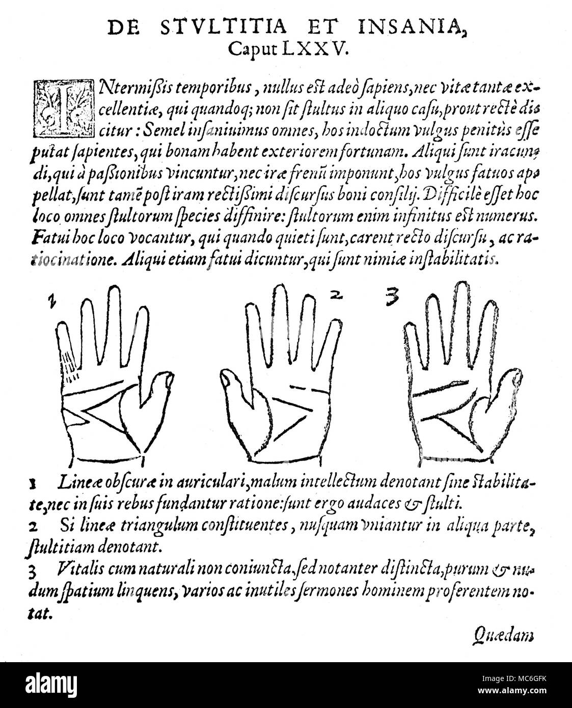 PALMISTRY Three palms and corresponding readings relating to stupidity and madness, from Johannes Taisnier, Opus Mathematicus, 1562. Í.  The fixed-sign interpretations are as follows:   1.  A number of fate lines on the small finger (Finger of Mercury), denote a poor intellect with much stability, and without a basis of reason:  such persons are therefore courageous but stupid.  2.   When the Triangle  of the hand (such an important configuration in mediaeval palmistry) is badly formed, without precise angular terminations, this may be taken as a sign of stupidity.   3.  When the Head line an - Stock Image