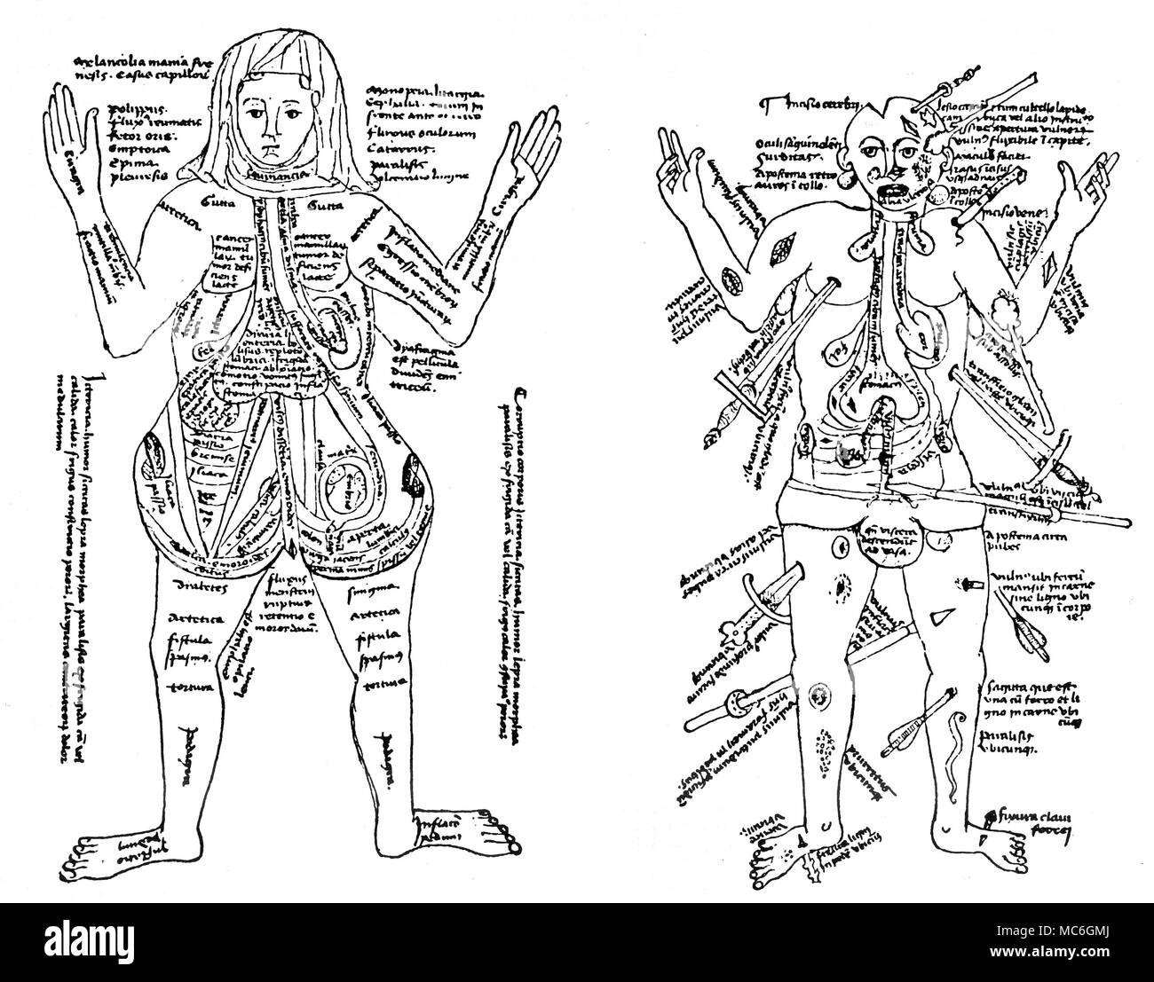 MEDICAL  - 'PREGNANCY' IMAGE - WOUND-MAN IMAGE [Left]  Mediaeval drawing (early 15th century) displaying the innards of the pregnant woman (Bild der Schwangeren).   The Latin legends include the names of illnesses to which the pregnant woman was believed to be susceptible.[Right] Mediaeval drawing (early 15th century) displaying the standard 'Wounded Man' image (the Wundenmann) - this marks out the common types of wounds received by men in battle. Both images are from 'Eine Pariser 'Ketham' Handshfit aus der zeit Konig Karls VI (1380-1422)' in Archiv fur Geschichte der Medizin, Band 2, 1909. - Stock Image