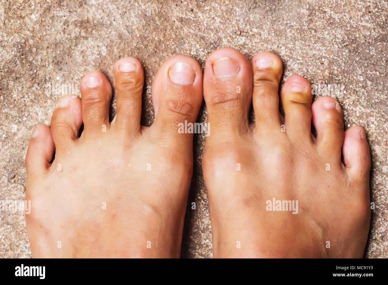 Foot, Rheumatoid foot disease background. - Stock Image