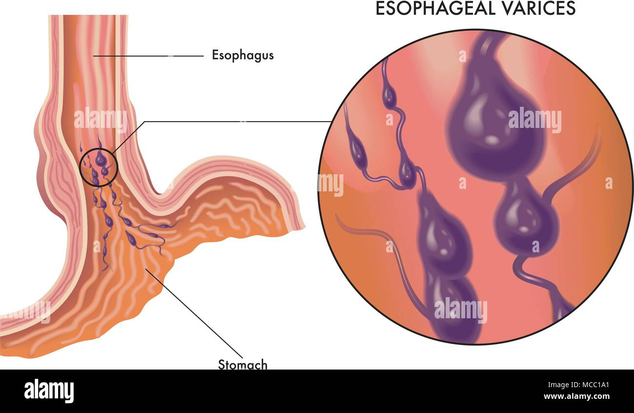 A medical illustration of the symptoms of esophageal varices Stock ...