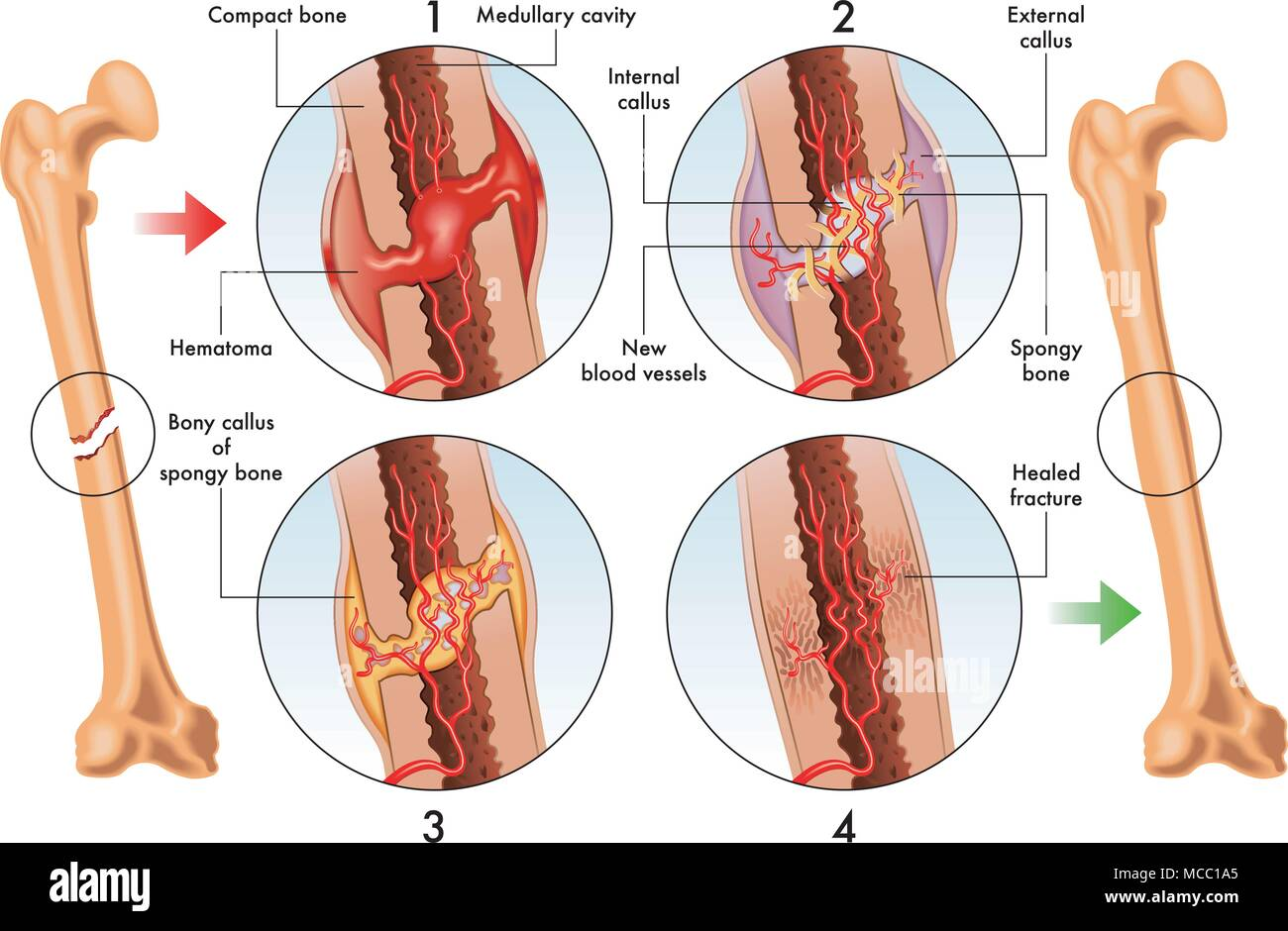 vector medical illustration of stages of bone fracture repair - Stock Image
