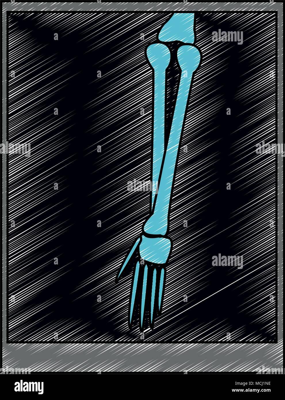 Xray bones images scribble Stock Vector